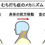 【自動車用語辞典:衝突安全「ヘッドレスト」】追突などによる頸部の損傷を低減する必須装備 - glossary_passive_safty_headrest_01